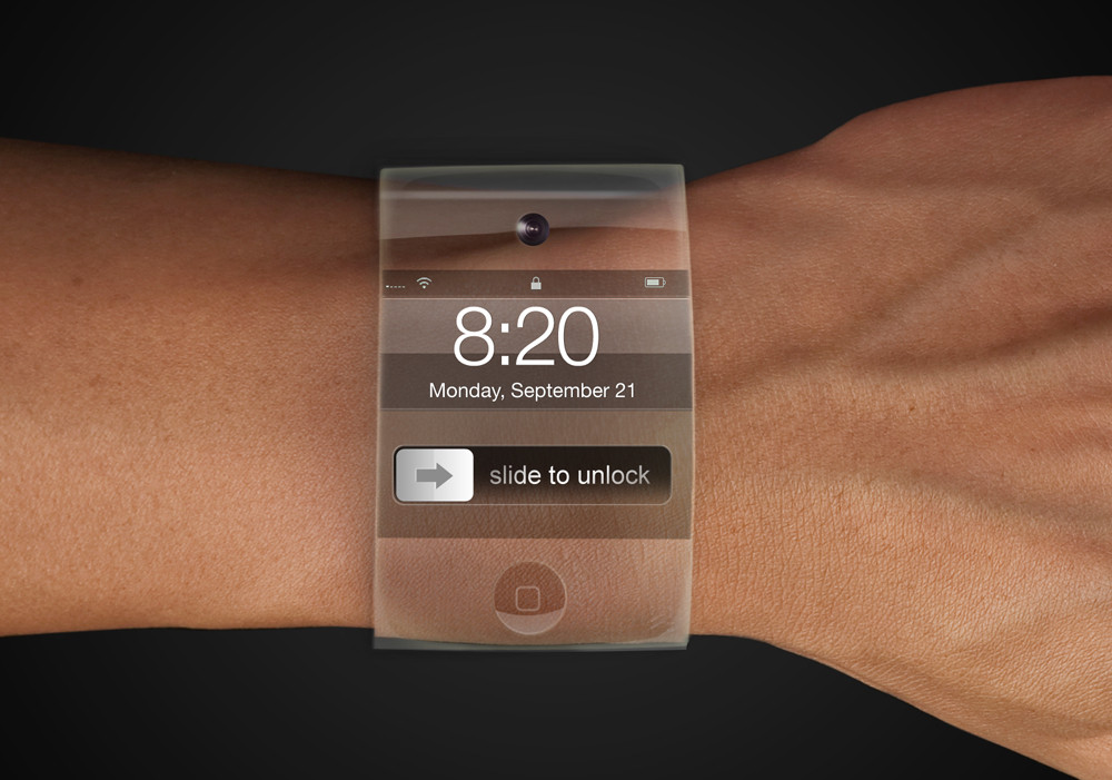 iPhone Wrist (Yrving Torrealba 002)