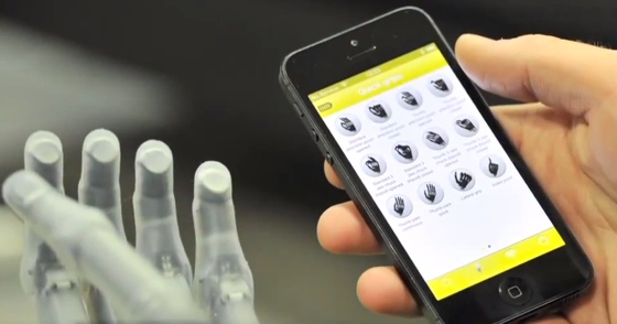 Bionic hand teaser