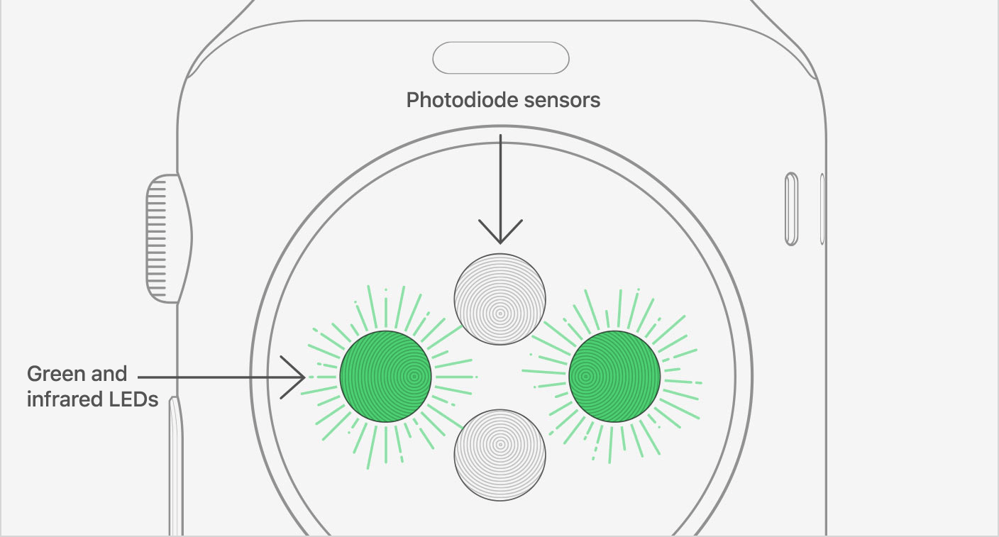 Elevated Heart Rate: Apple Watch heart rate sensor overview