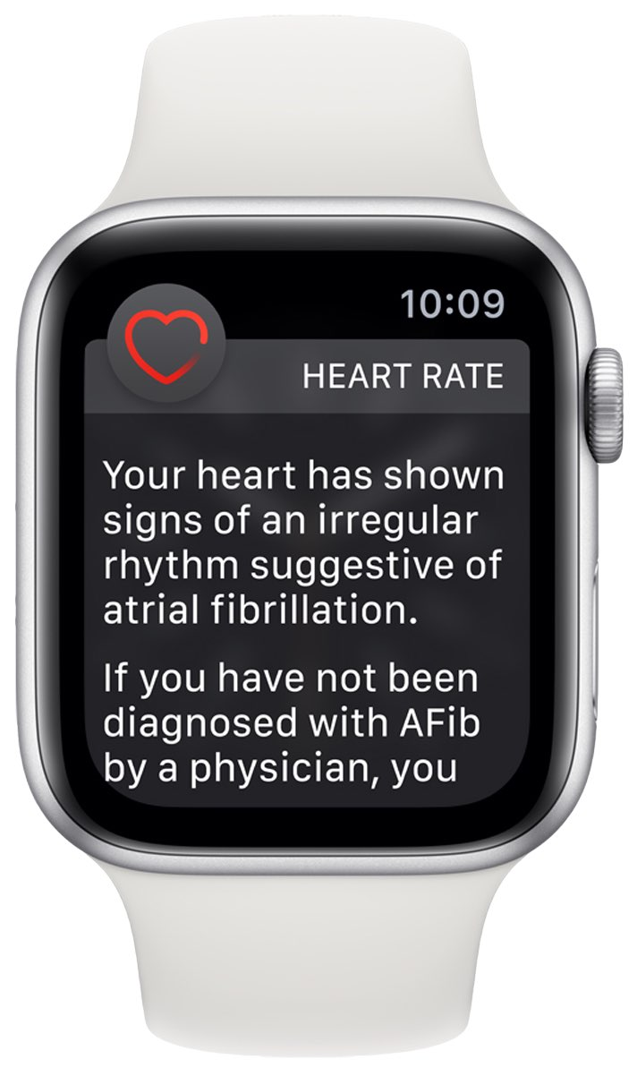 An image showing an irregular heart rate notification displayed on an Apple Watch