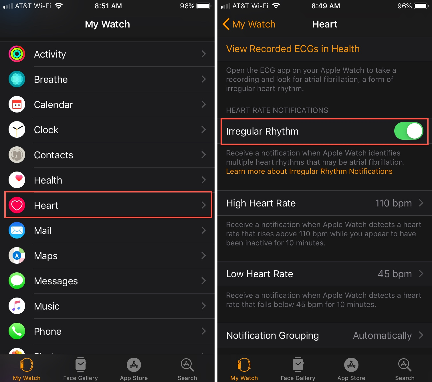 Enable Irregular Rhythm Notification Watch app