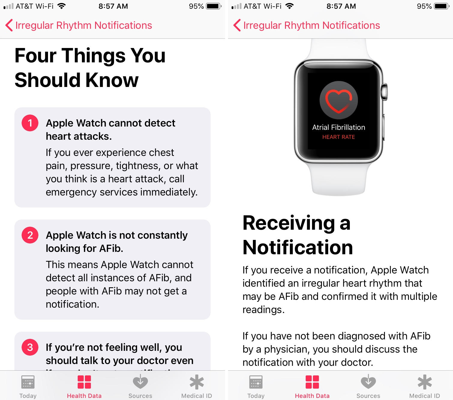 Irregular Rhythm Notification detail screens four things